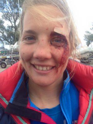 Autsch - wenn Boote zurueckschlagen - 2015